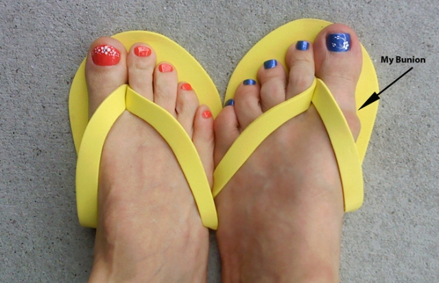 Pretty toenails