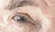 Dad's eye