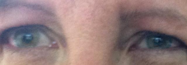 Painful eyes