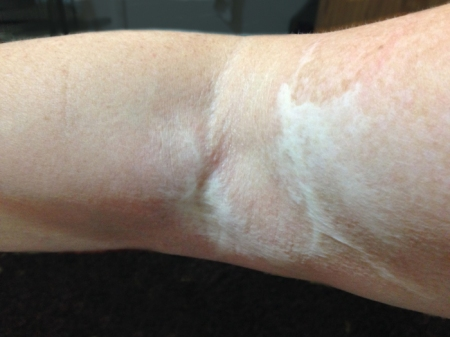 I share this photo of a large scar on my right arm from 4 years ago when I was burned carrying breakfast on a tray to my former husband. (The hot tea spilled.) My scar is sometimes a painful reminder of my former life, but it also is a beautiful example of healing for me.