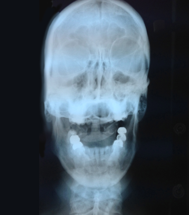 """I am always smiling! Seriously, I snapped this picture taken while looking at my x-ray with a chiropractor that I hoped could help my eye condition. It was definitely a """"stretch"""" of faith and didn't do anything for me."""